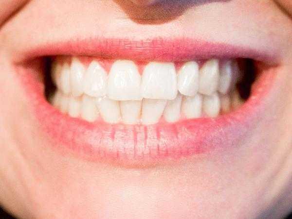 ząb sztuczny